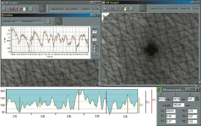 Visiometer software